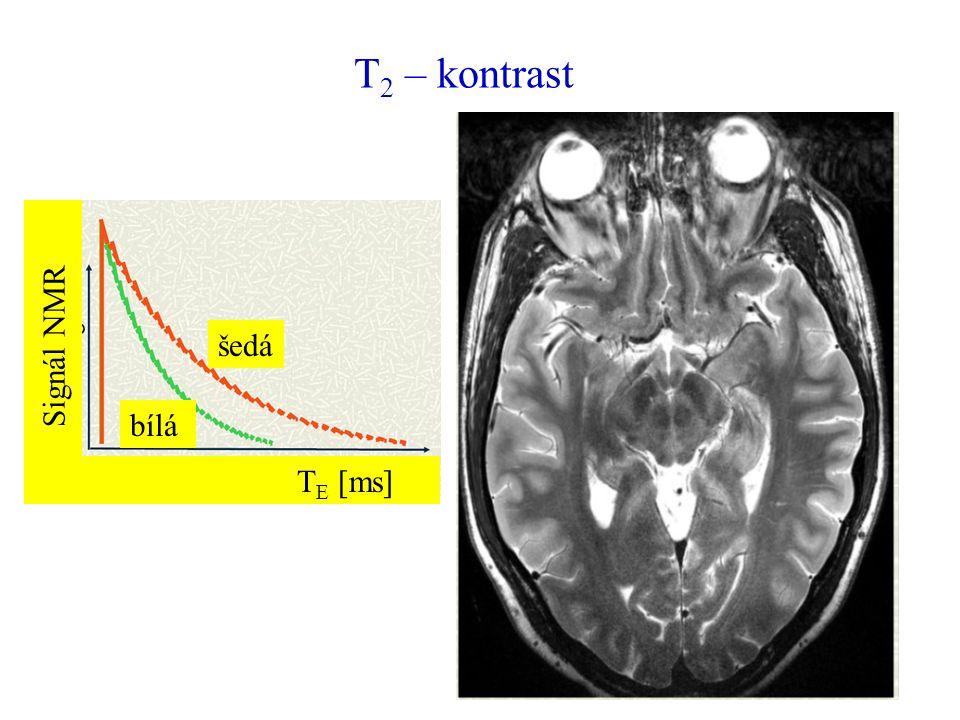 T2 – kontrast šedá bílá TE [ms] Signál NMR